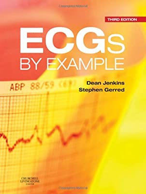 ECGs by Example, 3e by Churchill Livingstone