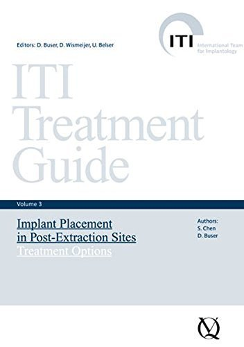 ITI Treatment Guide, Volume 3: Implant Placement in Post-Extraction Sites: Treatment Options (ITI Treatment Guides) by S. Chen (2008-01-01)