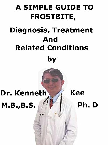 A simple guide to frost bite diagnosis treatment and related a simple guide to frost bite diagnosis treatment and related conditions by kee fandeluxe Ebook collections