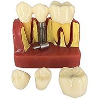 HEALIFTY Zahnmedizinisches Demonstrationszahnmodell Standardstudie Unterrichten des Zahnmedizinischen Modus preisvergleich bei billige-tabletten.eu