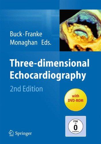 Three-dimensional Echocardiography