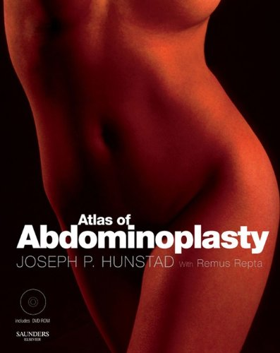 Atlas of Abdominoplasty (Techniques in Aesthetic Plastic Surgery) (English Edition) (Fleurs Cracker)