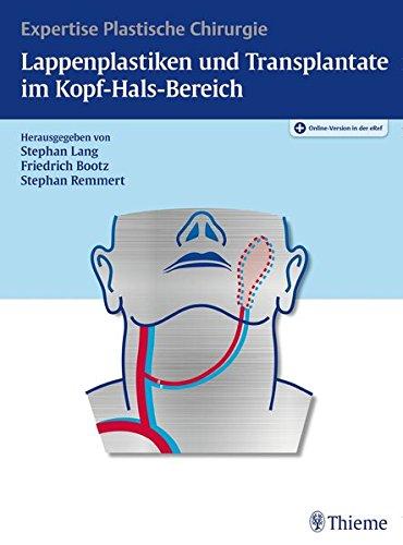 Lappenplastiken und Transplantate im Kopf-Hals-Bereich: Expertise Plastische Chirurgie (Chirurgie Hals-plastischen)