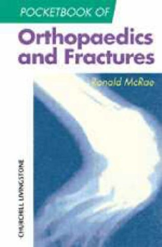 Pocketbook of Orthopaedics and Fractures (Churchill Pocketbooks) by Ronald McRae FRCS(Eng Glas) FChS(Hon) AIMBI Fellow of the British Orthopaedic Association (1999-09-10)
