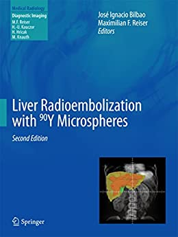 Torrent Descargar Español Liver Radioembolization with 90Y Microspheres (Medical Radiology) Epub Libre