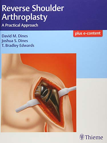 Reverse Shoulder Arthroplasty: A Practical Approach