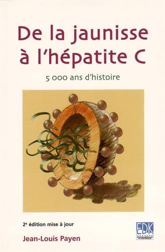 De la jaunisse à l'hépatite C : 5000 ans d'histoire