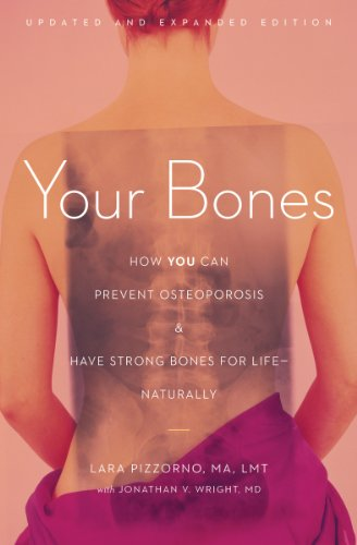Your Bones: How You Can Prevent Osteoporosis and Have Strong Bones for Life-Naturally (English Edition)
