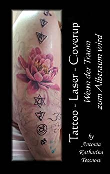 Tattoo - Laser - Cover Up: Wenn der Traum zum Albtraum wird