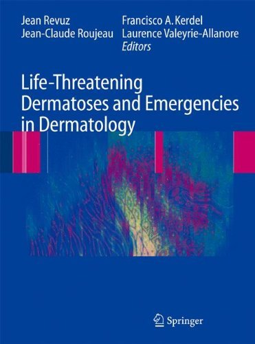 Life-Threatening Dermatoses and Emergencies in Dermatology (2009-04-24)