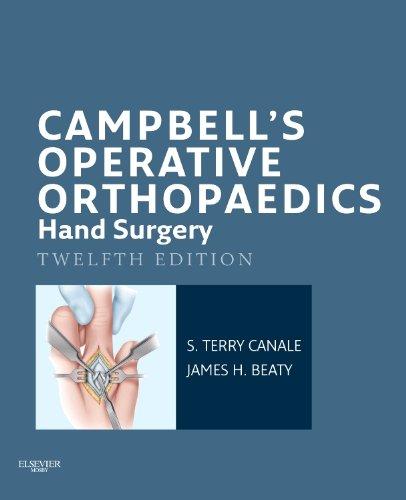 Campbell's Operative Orthopaedics: Hand Surgery E-Book (English Edition)