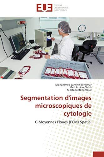 Segmentation d'images microscopiques de cytologie par Mohammed Lamine Benomar