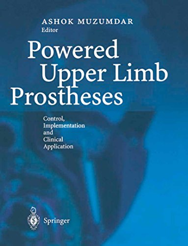 Powered Upper Limb Prostheses: Control, Implementation and Clinical Application