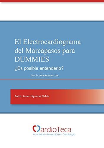 El Electrocardiograma del Marcapasos para Dummies. ¿Es posible entenderlo?: El libro definitivo para médicos no cardiólogos para poder entender el ECG del marcapasos por Javier Higueras