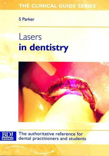 Lasers: in Dentistry (Clinical Guide)