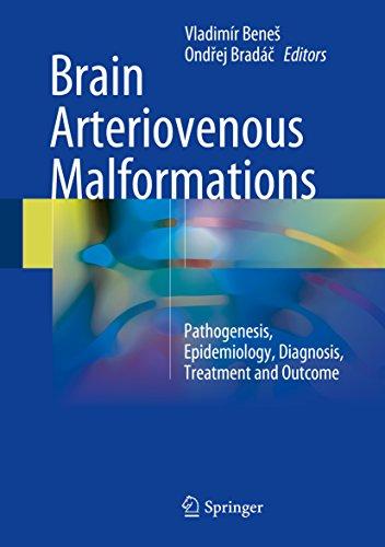 Brain Arteriovenous Malformations: Pathogenesis, Epidemiology, Diagnosis, Treatment and Outcome (English Edition)