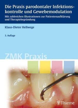 Die Praxis parodontaler Infektionskontrolle und Gewebemodulation: Mit zahlreichen Illustrationen zur Patientenaufklärung und Therapiebegründung