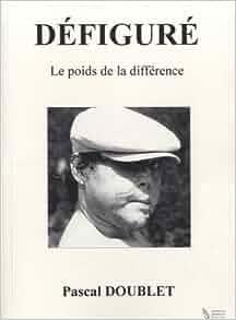 Amazon.fr - Défiguré - le Poids de la Différence - Pascal Doublet - Livres