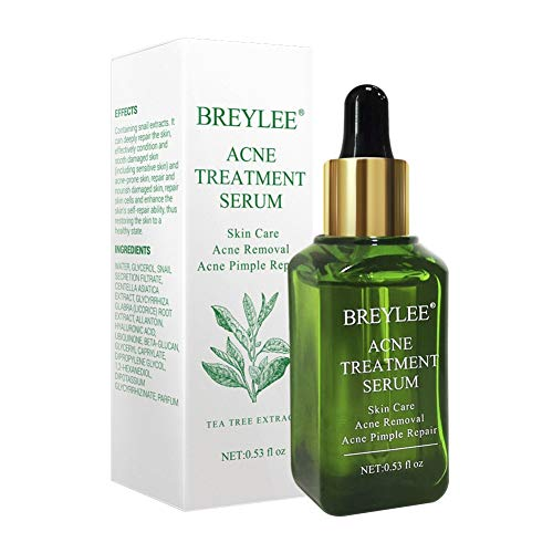 Allbesta Anti Acne Treatment Serum Facial Scar Removal Pimple Remover Hautpflege Reparieren Haut Essence