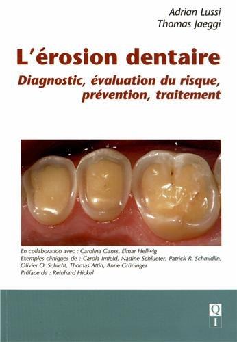 L'érosion dentaire : Diagnostic, évaluation du risque, prévention, traitement