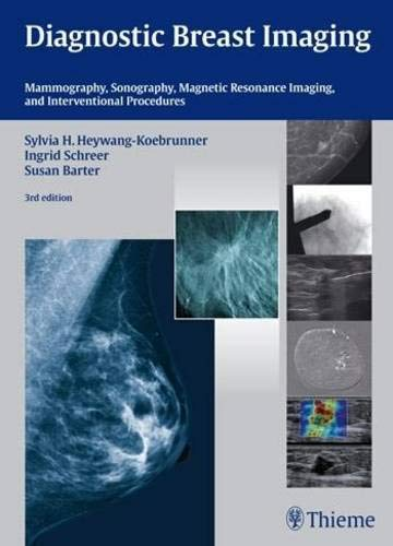 3 Brustkrebs (Diagnostic Breast Imaging: Mammography, Sonography, MRI and Interventional Procedures)