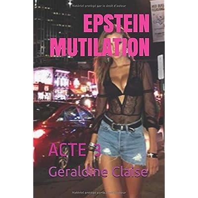 EPSTEIN MUTILATION: ACTE 3