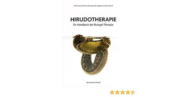 Hirudotherapie: Ein Handbuch der Blutegel-Therapie: Amazon.de ...