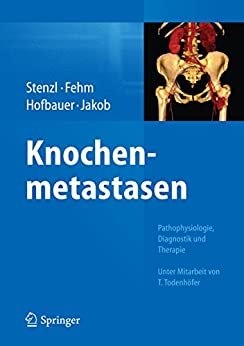 Knochenmetastasen: Pathophysiologie, Diagnostik Und Therapie - Unter Mitarbeit Von T. Todenhöfer por Arnulf Stenzl epub