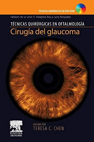 Cirugía del glaucoma + DVD-ROM por T. Chen