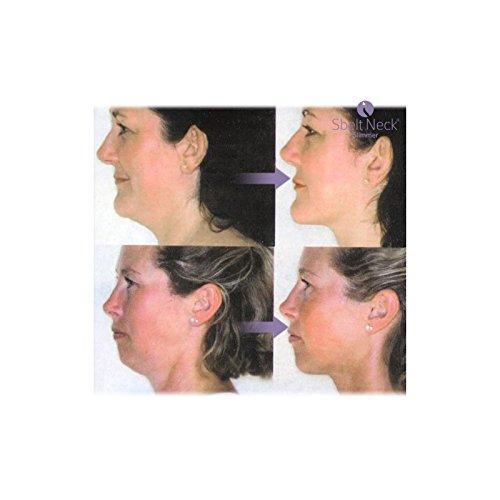 riduttore-di-doppio-mento-e-massaggiatore-collo-sbelt-neck-slimmer