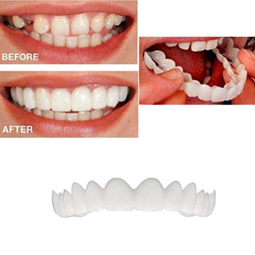 huichang Perfect Smile Zahnersatz Komfort Fit Flex - Die Unglaublichen und sofortigen wiederverwendbaren und Abnehmbaren Veneers, die Dir den Blick der Perfekten Zähne Geben (1 Stück Oben)