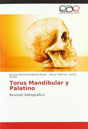 Torus Mandibular y Palatino: Revisión bibliográfica