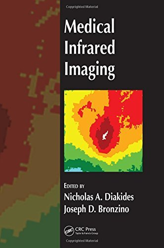 Medical Infrared Imaging by Nicholas A. Diakides (2007-07-23)