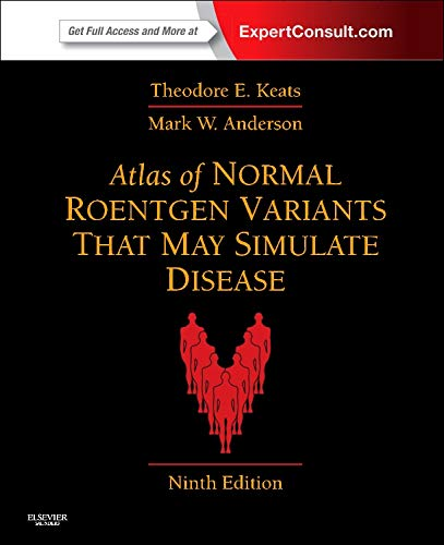 Atlas of Normal Roentgen Variants That May Simulate Disease: Expert Consult - Enhanced Online Features and Print, 9e por Theodore E. Keats MD