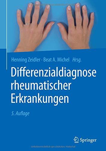 Differenzialdiagnose rheumatischer Erkrankungen