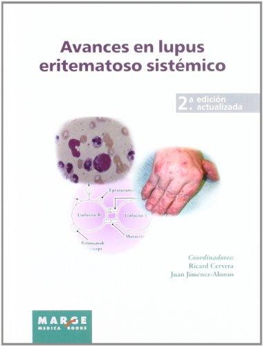 Avances en lupus eritematoso sistémico (2ª ed.) (Avances en enfermedades autoinmunes sistémicas)