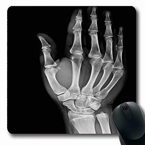 Luancrop Mousepads Arm Xray Normal Hand Wissenschaft Digit Gebrochene Medizin Unfall Anatomie Arthritis Diagnose rutschfeste Gaming Mouse Pad Gummi Oblong Mat (Medizin, Diagnose)