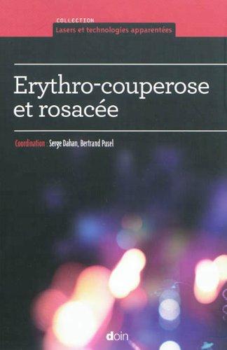 Erythro-couperose et rosacée
