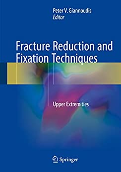 Descargar Con Torrent Fracture Reduction and Fixation Techniques: Upper Extremities En PDF Gratis Sin Registrarse