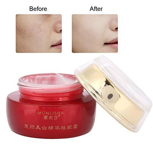 Entfernen Sommersprossen Creme, Sunburn Speckle Entfernung Creme verblassen Dark Spot Melanin feuchtigkeitsspendende Gesichtspflege Creme -