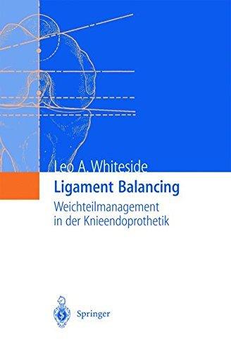 Ligament Balancing: Weichteilmanagement in der Knieendoprothetik