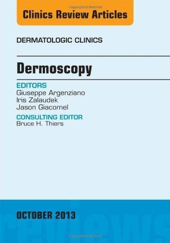 Dermoscopy, an Issue of Dermatologic Clinics, 1e (The Clinics: Dermatology) 1st Edition by Argenziano MD, Giuseppe, Zalaudek MD, Iris, Giacomel MBBS, J (2013) Hardcover
