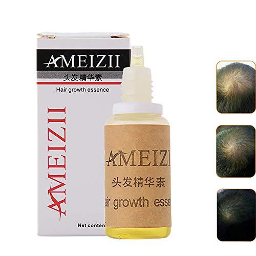 Gyratedream Hair Growth Essence Pérdida cabello Líquido