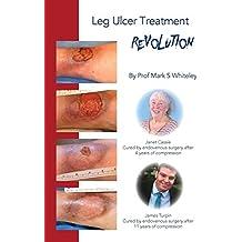 Leg Ulcer Treatment Revolution