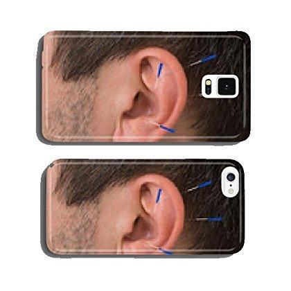 my-handy-design Akupunktur Nadeln auf Ohr Handy Schutzhülle iPhone 6