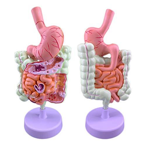 Huili Kolonpathologiemodell - Gastrointestinale Kolonläsion Darmkrankheit Anatomiemodell Viszerales Läsionsmodell - für medizinische Ausbildungshilfen, Laborbedarf