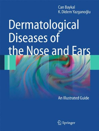 Ohr-plastischen Chirurgie (Dermatological Diseases of the Nose and Ears: An Illustrated Guide)