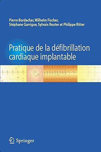 Pratique de la défibrillation cardiaque implantable