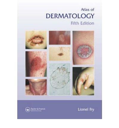 [(Atlas of Dermatology)] [Author: Lionel Fry] published on (December, 2005)