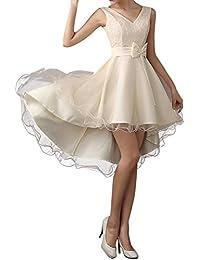 Zehui Vestido de fiesta elegante para Las mujeres con cuello en V con cordones de encaje